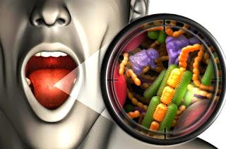 Sudah rajin sikat gigi setiap hari tapi masih berlubang dan menyebabkan sakit gigi?