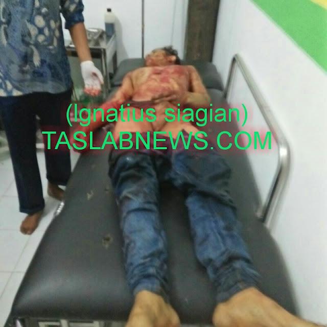 Korban Ilham Sirait alias Ketel saat berada di Puskesmas Kualuh Leidong, Labura.