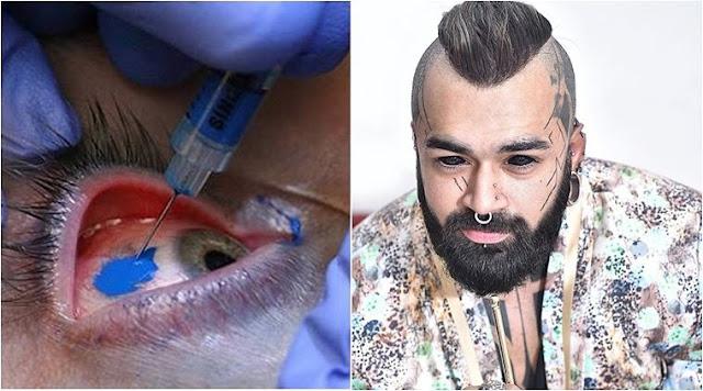 Karan King,Delhi Man Is The 1st Indian To Get An Eyeball Tattoo