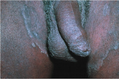 Tinea cruris, with annular scaling at the leading edge of the inflammatory  lesion extending from the inguinal fold to the thighs