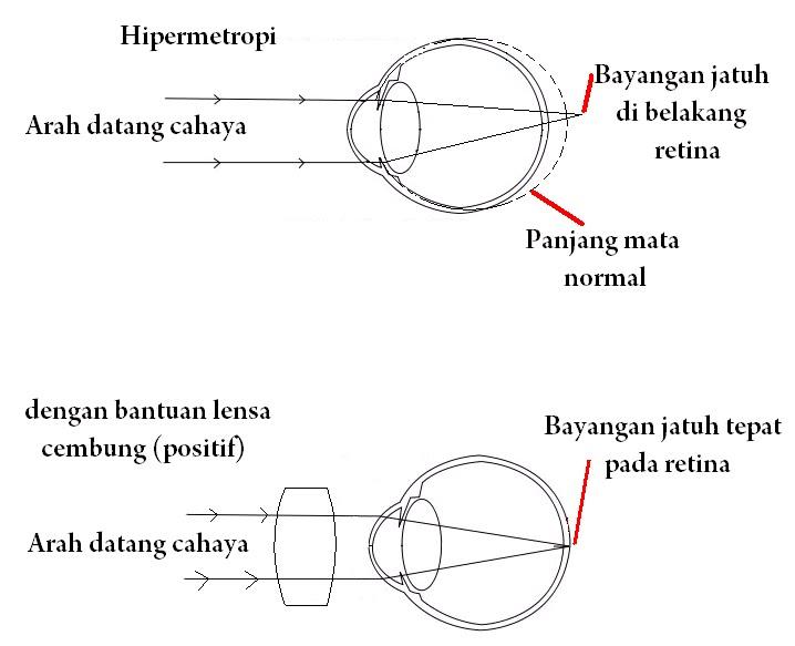 hipermetropie a gradului slab al ambilor ochi nașterea la minus 6 viziune