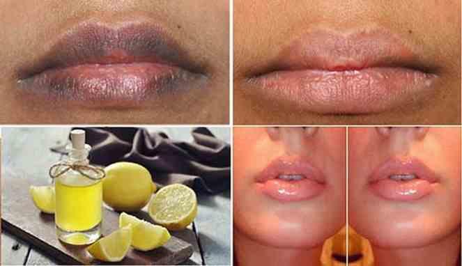 Cara Memerahkan Bibir Secara Cepat dan Alami dengan Lemon ...