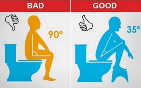 Tư thế ngồi vệ sinh cho người bị trĩ-1