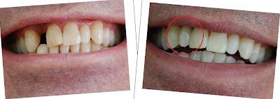răng tạm được dùng sau khi cấy ghép implant -4