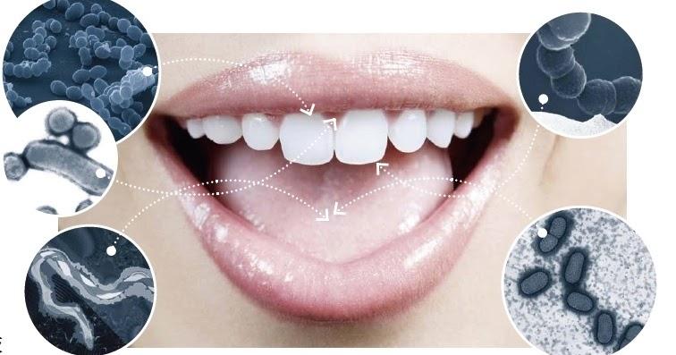 Бактерии в полости рта при кариесе