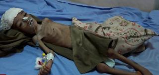 اشتعال اليمن بأسوأ أزمة إنسانية في العالم