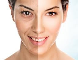 Como aclarar la piel manchada