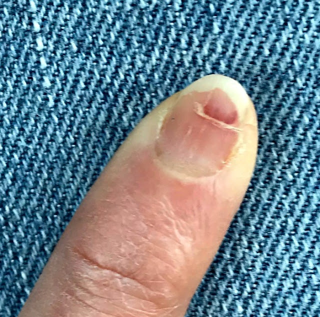 Badly injured fingernail