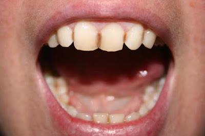 Cara menghilangkan noda hitam pada gigi