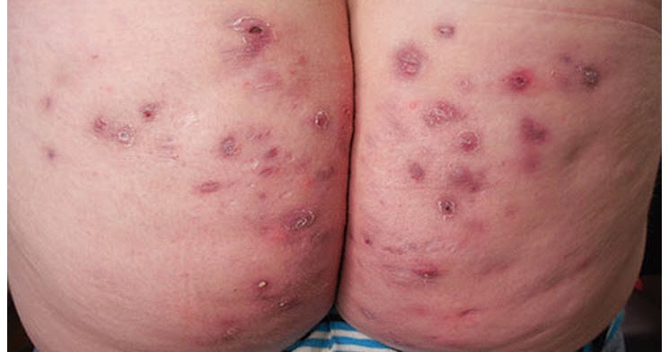 List of Synonyms and Antonyms of the Word: staph folliculitis