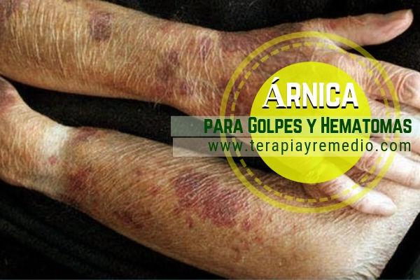 Remedio natural con árnica para tratar golpes y hematomas, mejora la circulación de a sangre