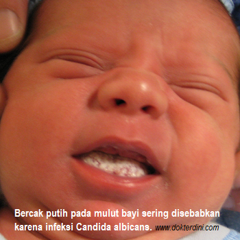 bercak putih mulut bayi, kandidiasis oral, oral thrush