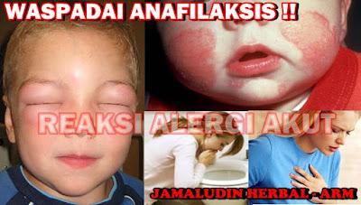 http://pengobatanmultikhasiat30.blogspot.co.id/2018/02/obat-herbal-untuk-mengobati-anafilaksis.html