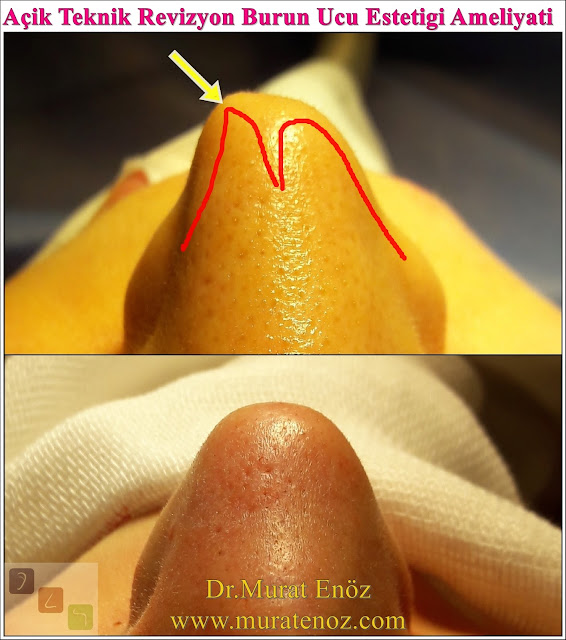 Revizyon burun ucu estetiği ameliyatı - Revizyon burun ucu estetiği operasyonu - Revizyon burun ucu ameliyatı fotoğrafları - Revizyon tipplasti operasyonu fotoğrafları