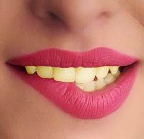 gigi kuning, gigi berkarat, cara putihkan gigi, faktor gigi menjadi kuning