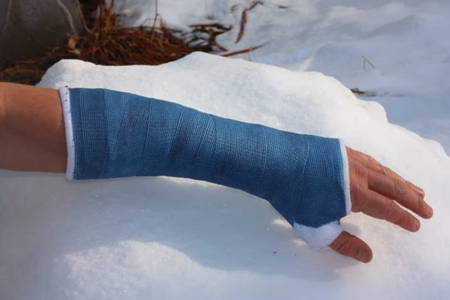 Broken wrist pain while in cast : The immortals series book 3