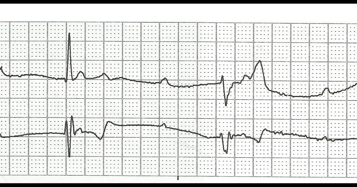 Float Nurse: Practice EKG Rhythm Strips 170
