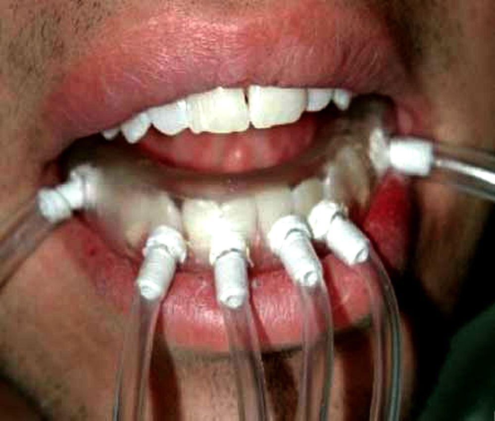 blanqueamiento-dental-ozono