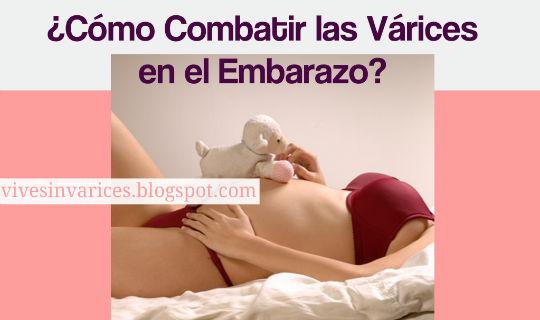 Como Combatir las Varices en el Embarazo