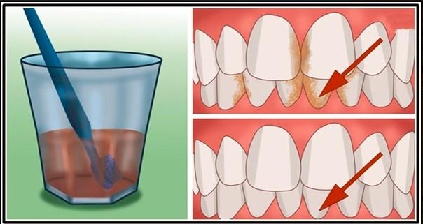 Dahsyat Inilah Cara Menghilangkan Plak Atau Karang Gigi Serta