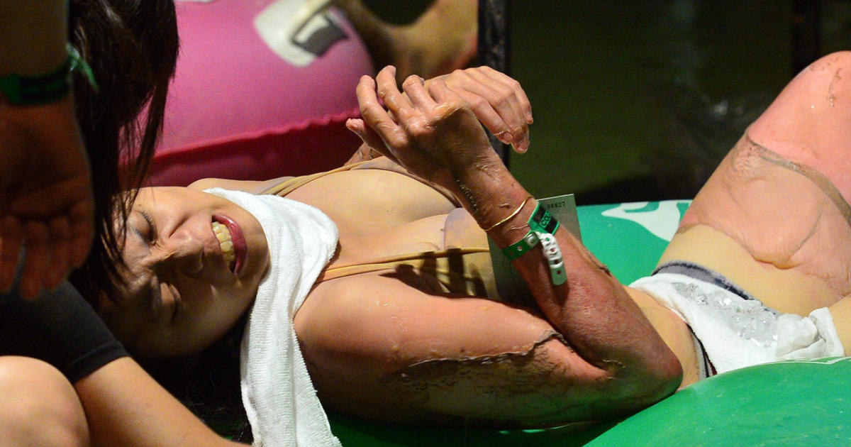 People tend to an injured woman at the Formosa Fun Coast amusement park after an explosion in the Pali district of New Taipei City on June 27, 2015.