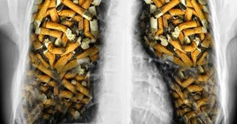fumatorii trebuie sa-si protejeze plamanii prin cure de detoxifiere frecvente