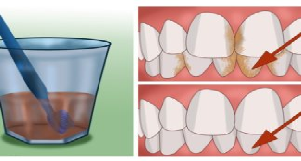 How To Naturally Whiten Your Teeth In 1 Minutes At Home