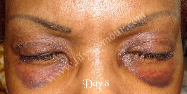 African American Ethnic Blepharoplasty Eyelid Surgery