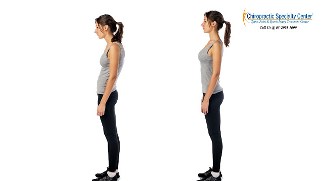 upper crossed syndrome and posture