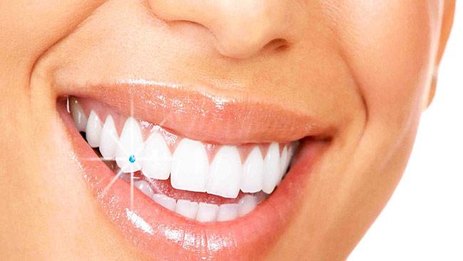 Dişleri Beyazlatan Yiyecekler Nelerdir - www.viphanimlar.com