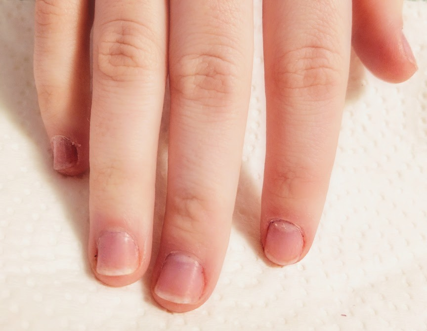 These Are Her Nails After Two Weeks Of Diligent Polish Application And Almost No Biting