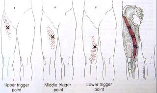 Dor no quadril Dor em virilha, Dor em coxa - Músculo Sartório