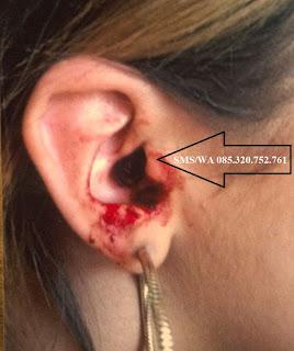 obat herbal untuk menyembuhkan telinga berdarah karena cotton bud