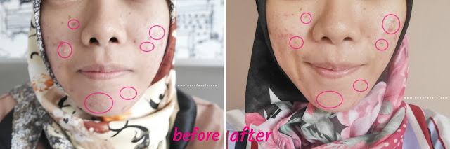 Before - After PHTE Avoskin