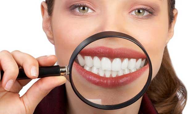 Cara Memutihkan Gigi Secara Alami Dalam Waktu Seminggu Cara