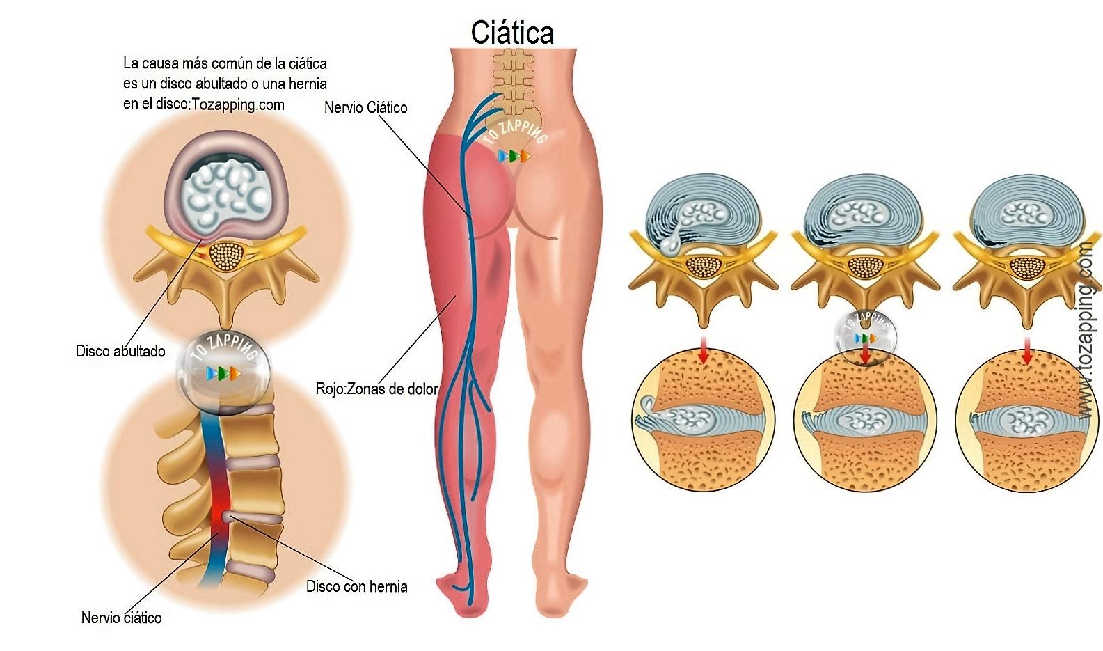 fisioterapia para el tratamiento de la ciática.