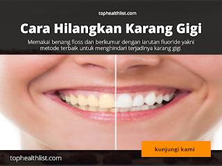 Wah Ini Ternyata Cara Mudah Hilangken Karang Gigi Terparah