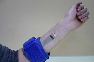 Graphene Skin Patch Measures Blood Sugar Without a Needle