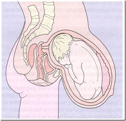 usg kehamilan