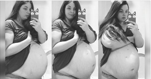 Les médecins demandent à cette mère de sacrifier sa fille pour sauver ses garçons – sa réponse est saluée par des milliions de personnes
