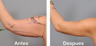 Fotos antes y despues de una lipolaser de brazos braquioplastia en Salutaris Guadalajara