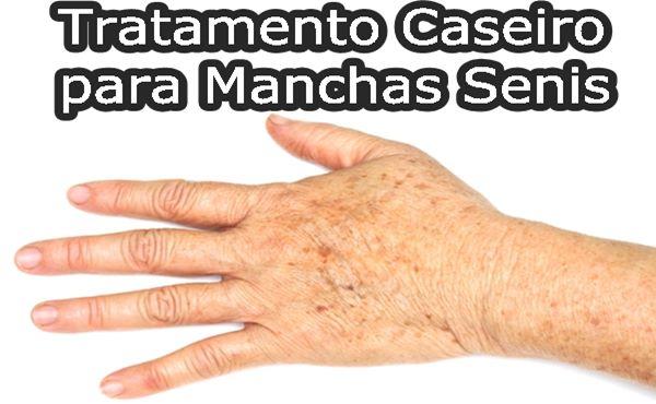 MANCHAS SENIS TRATAMENTO CASEIRO