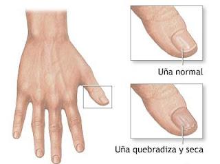 Varios problemas en las uñas, decapamiento