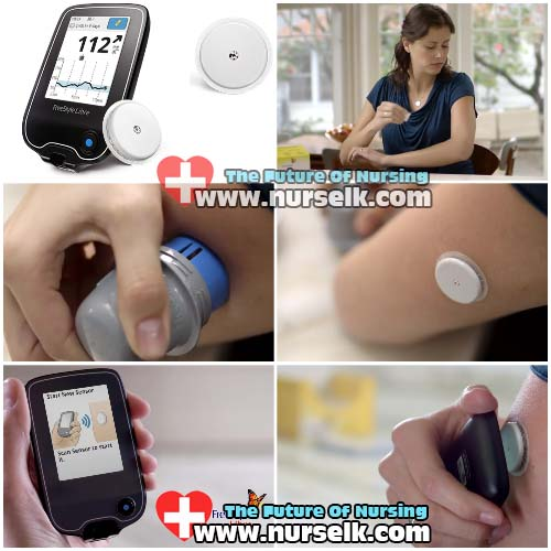 FreeStyle Libre, Blood Glucose Monitoring System