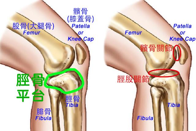 好痛痛 脛骨平台 膝蓋 股骨 脛骨 腓骨 髕骨