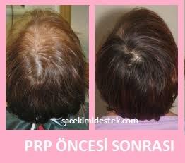 prp saç tedavisi yaptıranlar 8