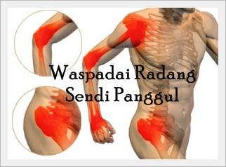Gejala lutut terasa nyeri