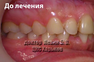 Зубы смыкаются по I классу Энгля