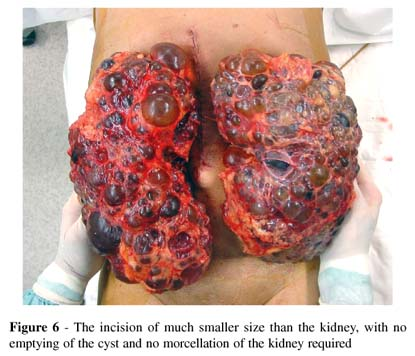 Kidney Disease, major contribution to the human - All Body Disease