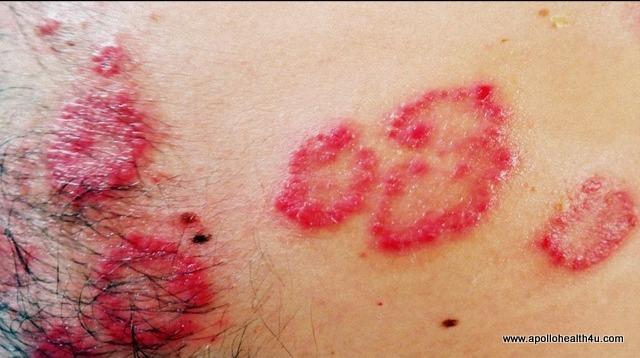 Psoriasis disease get rid off .